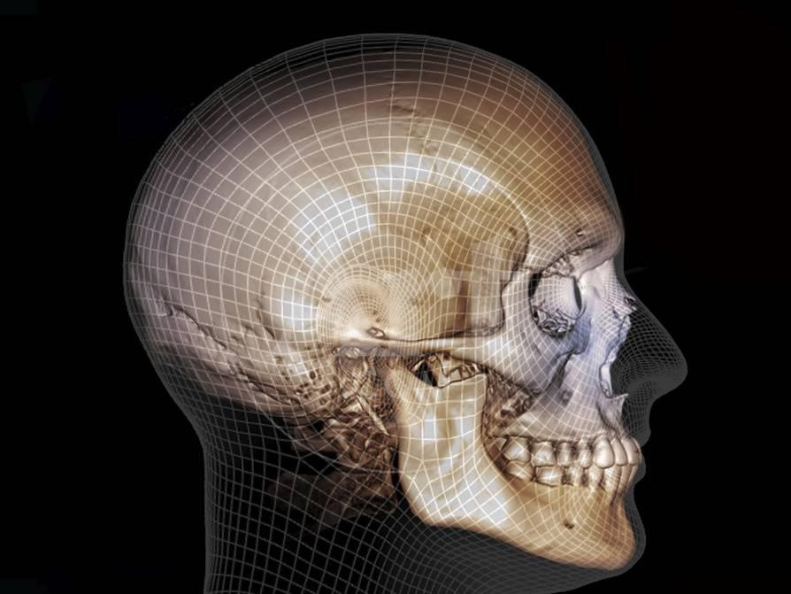 Human Skull 3d Ct Scan Photographic Print At Allposters