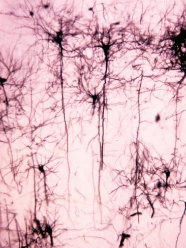 Neurons of the Cerebral Cortex Showing the Dendrites, Cell Bodies, and Axons Photographic Print