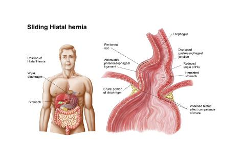 Medical Ilustration of a Hiatal Hernia in the Upper Part of the ...