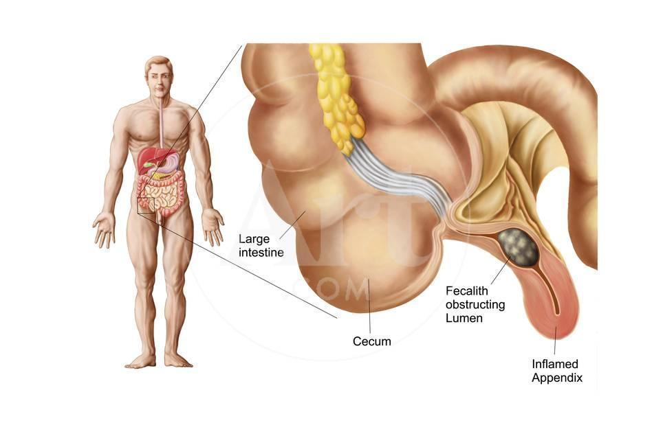 Medical Ilustration Of An Appendix With Appendicitis Art At