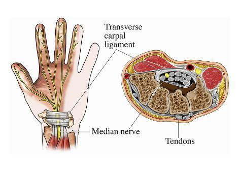 Illustration Of The Anatomy Of The Carpal Tunnel As Seen From Palmar