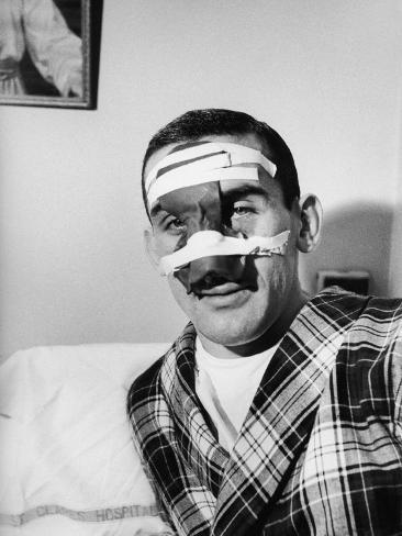 Ny Rangers Player Lou Fontinato Showing His Broken Nose Which He Received During a Game Premium Photographic Print