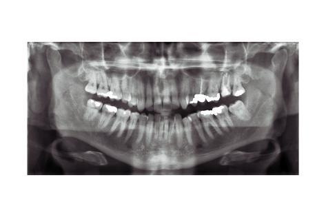 Panoramic Dental X-ray Lámina giclée en AllPosters.es