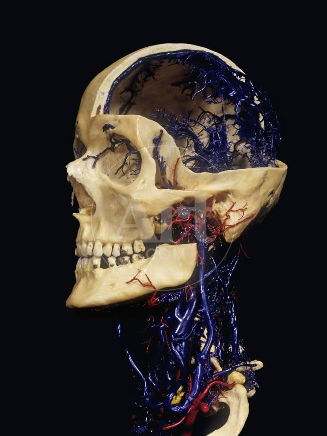 Human Skull With Resin Cast Showing Neck Blood Vessels Photographic