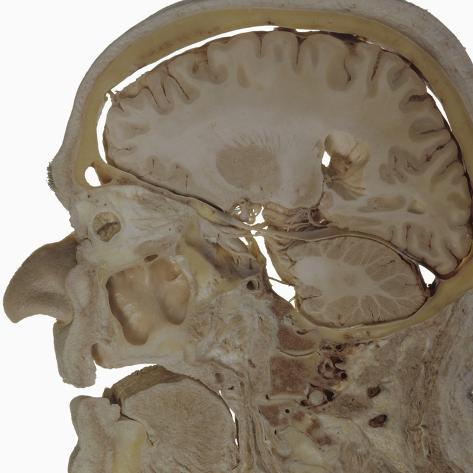 The Human Head and Brain in Sagittal Section Revealing the Position of the Brain, Brainstem Photographic Print