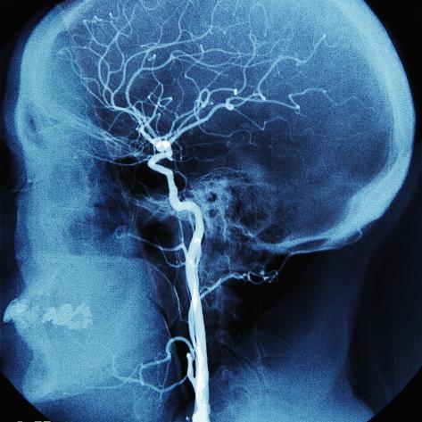 X-Ray of Human Head Photographic Print