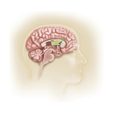 Sagittal View of Human Brain Showing the Corpus Callosum Poster - at ...