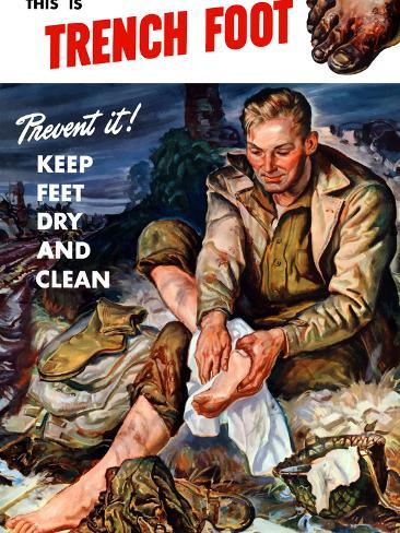Vintage World War II Poster of a Soldier On the Battlefield Changing His Socks Photographic Print