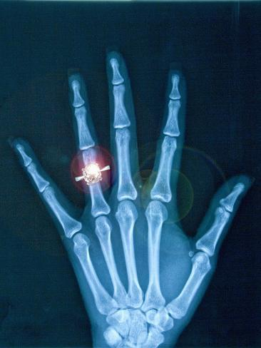 X-ray of hand with diamond ring Photographic Print