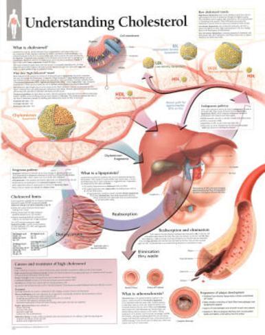 Understanding Cholesterol Educational Chart Poster Poster