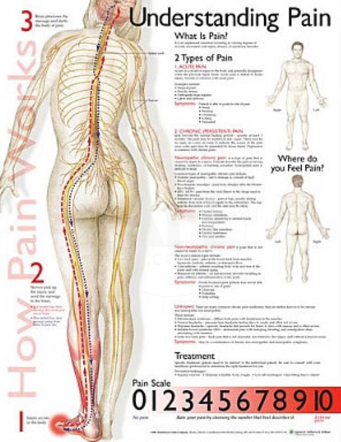 Understanding Pain Anatomical Chart Poster Print Poster - AllPosters.ca
