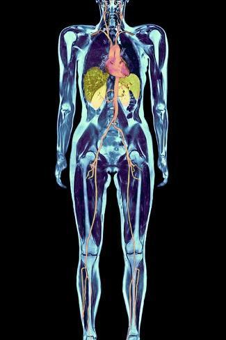 オールポスターズの volker steger full body scan mri scan 写真プリント