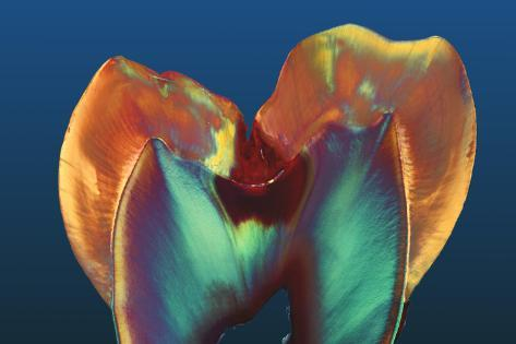 Polarised LM of a Molar Tooth Showing Decay Photographic Print