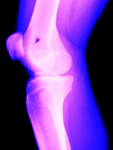 X-Ray of a Knee Photographic Print