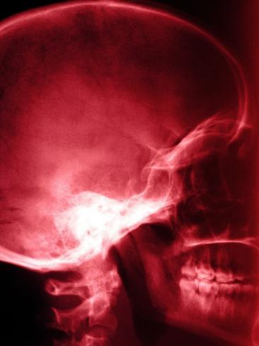 X-Ray of Human Skull Photographic Print at AllPosters.com Skull X Ray Views Chart
