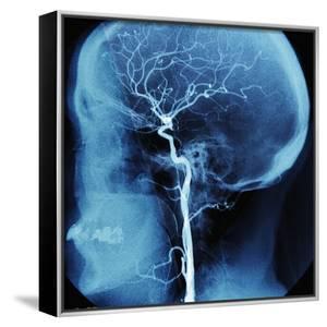 X-Ray of Human Head by Robert Llewellyn