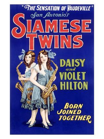 Siamese Twins, Hilton Sisters