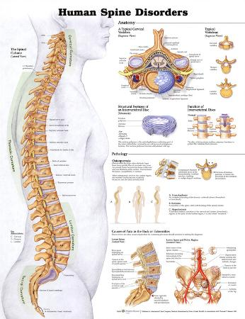 Human Spine Disorders Anatomical Chart Poster Print