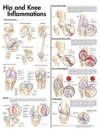 Hip and Knee Inflammations Anatomical Chart 2nd Edition Poster Print