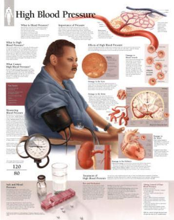 High Blood Pressure Educational Chart Poster