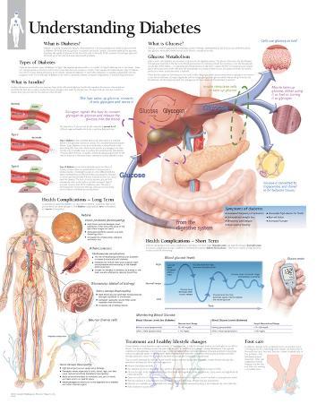 Laminated Understanding Diabetes Educational Chart Poster