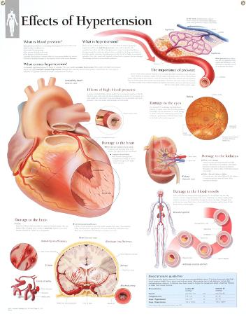 Laminated Effects of Hypertension Educational Blood Pressure Chart Poster