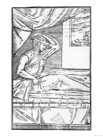 """Reconstructive Surgery on the Nose, Illustration from """"De Curtorum Chirurgia Per Insitionem"""""""