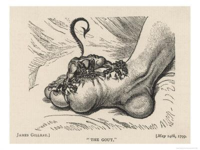 Little Devil Sinks His Teeth into the Swollen Foot of a Gout Sufferer