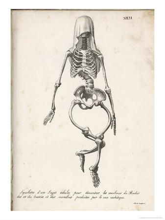 Skeleton of an Adult Patient Afflicted with Rickets