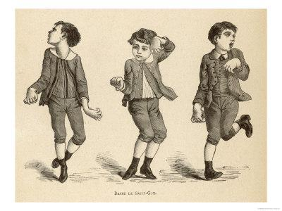 Boys Afflicted with Chorea Known as St. Vitus' Dance or as Danse de Saint-Guy in France