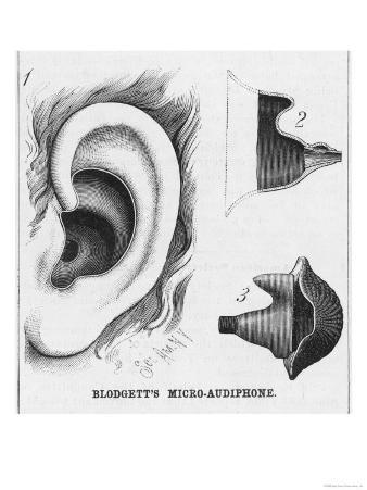 Diagrams to Show Blodgett's Micro-Audiphone Hearing Aid and How It is Inserted into the Ear