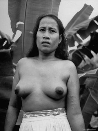 Native Woman with Love Scars on Arm