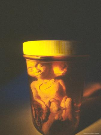 Alien Babies in Jar