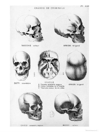 Skulls of Murderers, from L'Homme Criminel by Cesare Lombroso