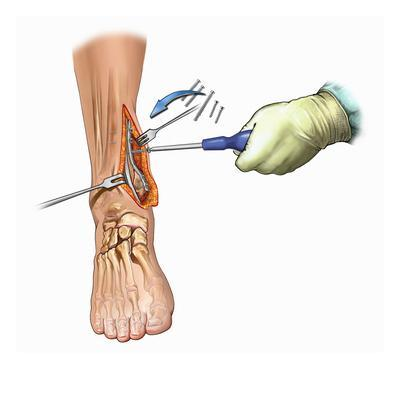 Biomedical Illustration of Medial Ankle Surgical Exposure and Maleollar Fracture Fixation