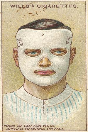 Burns on Face, No.32 from the 'First Aid' Series of 'Wills's Cigarettes' Cards, 1913