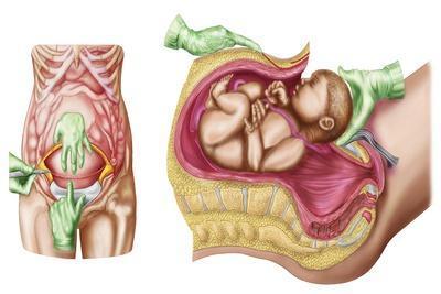 Illustration Showing Caesarean Delivery of Fetus