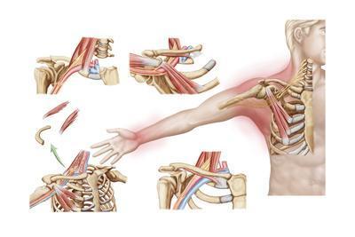 Medical Illustration Detailing Thoracic Outlet Syndrome
