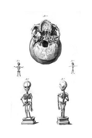 Skull and Foetus Skeletons