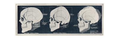 Comparison of British and German Skull Shapes, WW1