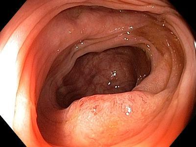 Cancer of the Colon