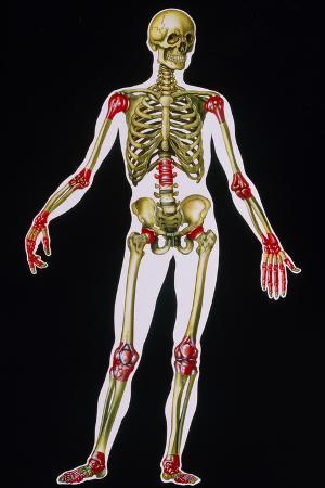 Illustration of Arthritis Sites on the Body