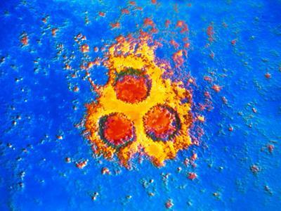 False-col TEM of Varicella-Zoster Virus Particles