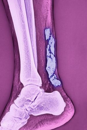 Achilles Tendinitis, X-ray