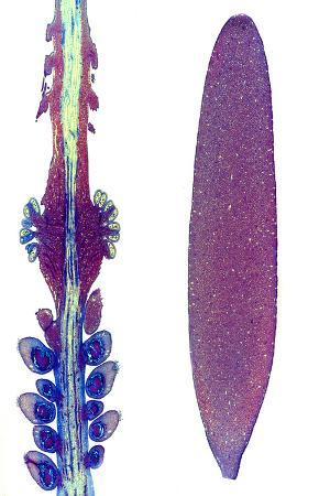 Arum Plant Spadix, Light Micrograph