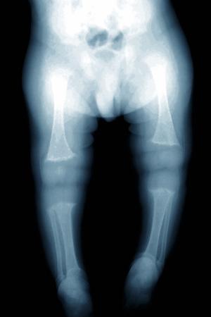 Rickets, X-ray