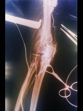 Arterial Thrombosis Removal, X-ray