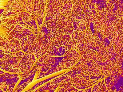 Blood Vessel Cast from Rat Pancreas