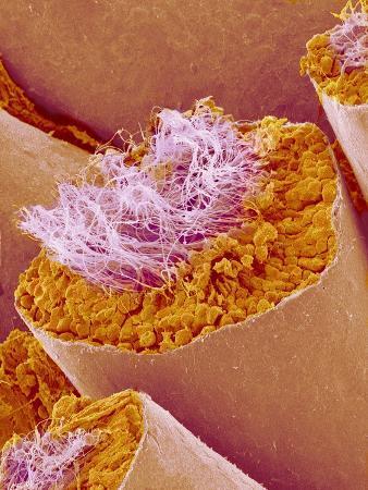 Sperm in Testis of a Rat