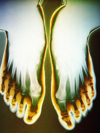 X-ray of Feet